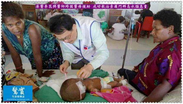 20170824a(生活情報)-屏醫李昆興醫師跨國醫療援助-成功救治索羅門群島水腦患童